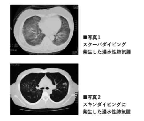 肺気腫 画像